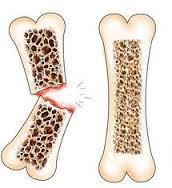 Oesteoporosis