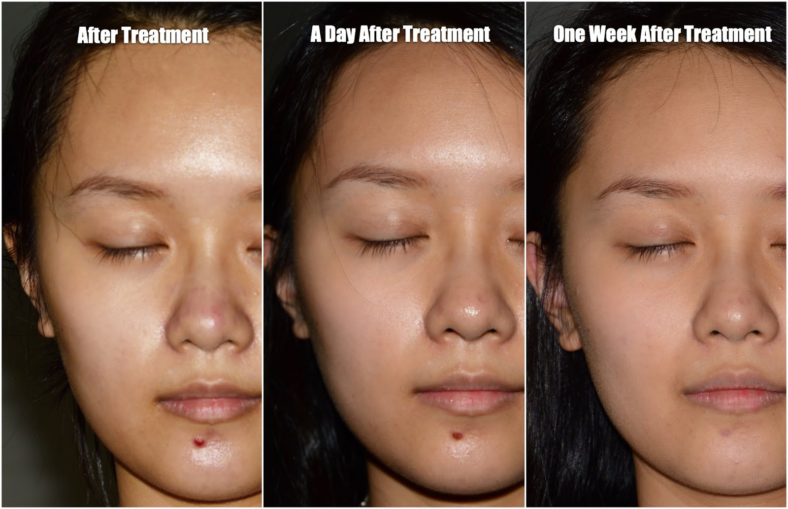 medi spa facial malaysia