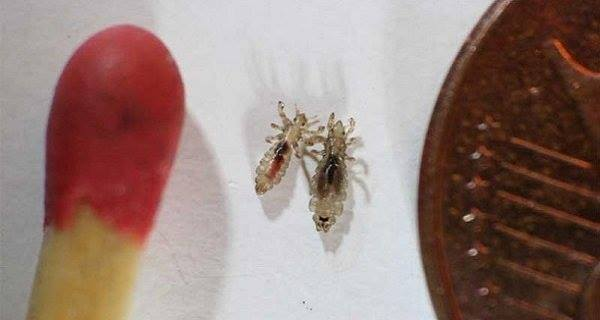 Cheap Way To Get Rid Of Head Lice That Doctors Won't Tell You