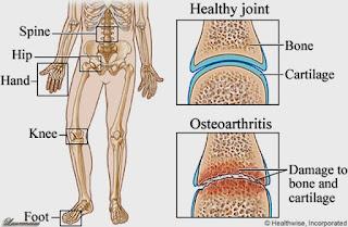 Solusi Alami Mengobati Pengapuran Tulang