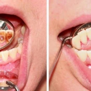 Πώς να αφαιρέσετε την πλάκα απο τα δόντια με αυτές τις φυσικές συνταγές