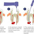 How painful is a root canal?