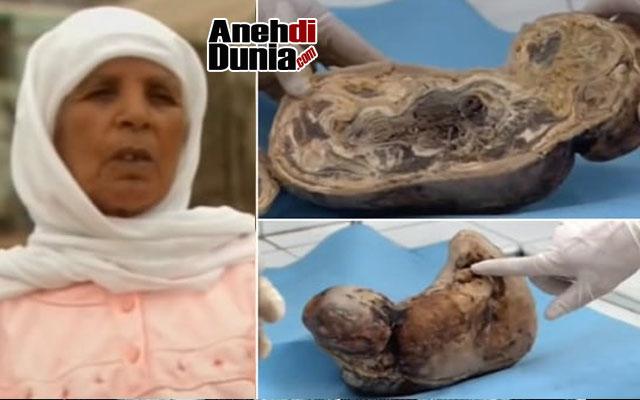 Kasus Zahra Aboutalib