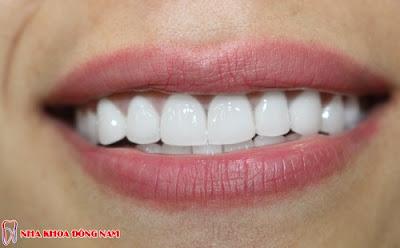 so sánh răng sứ kim loại và răng sứ không kim loại -9