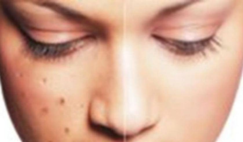 Nama Obat Penghilang Flek Hitam Di Apotik