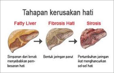 Solusi Atasi Penyakit Liver 100 % Yang Manjur