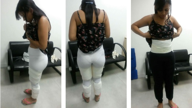 Mulher presa ao desembarcar de voo em Fortaleza trazendo cocaína presa ao corpo.