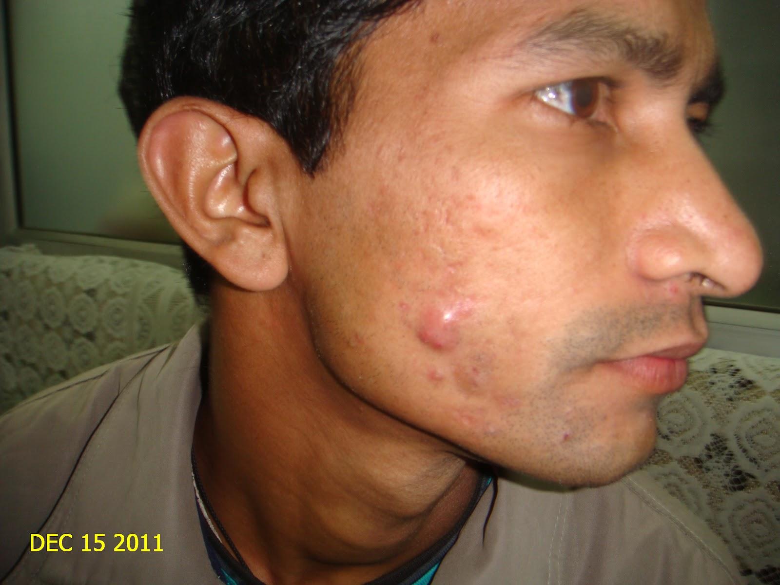 Acne Nodules Face