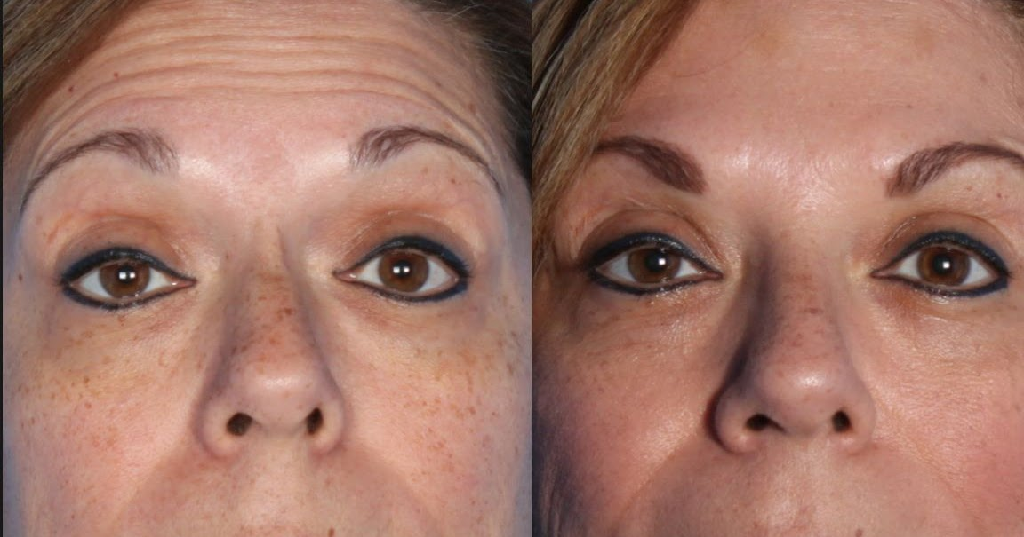 Face Toning Workouts To Enhance Your Appearance ...