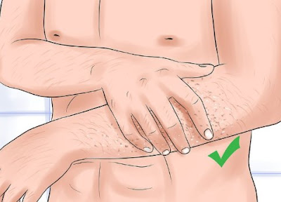 A #Complete #Guide To #Treat #Razor #Burn #Effectively [#Health #Remedies]