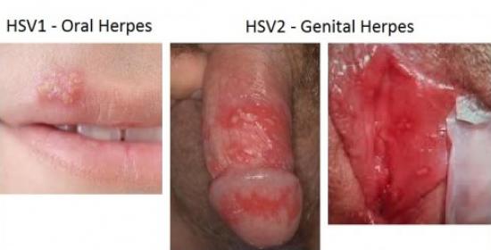 https://2.bp.blogspot.com/-XG8fDKh4umY/WJFf7yNn6TI/AAAAAAAAAUE/Mqb2acp2SyMPPm1MsHo00AMIIgBQmcJ8gCLcB/s1600/Obat-Herpes-De-Nature6-300x200.jpg