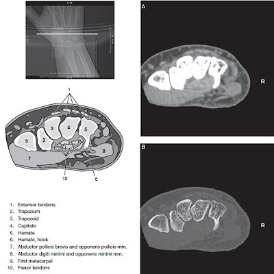 wrist ct with label