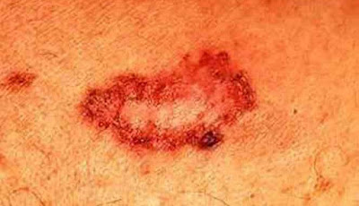 Skin cancer usually starts with a change on the skin Skin Cancer Causes, Symptoms And Treatment