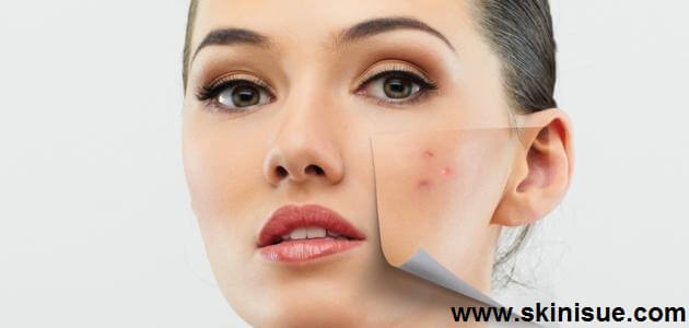 What is acne Treatment for Combination Skin