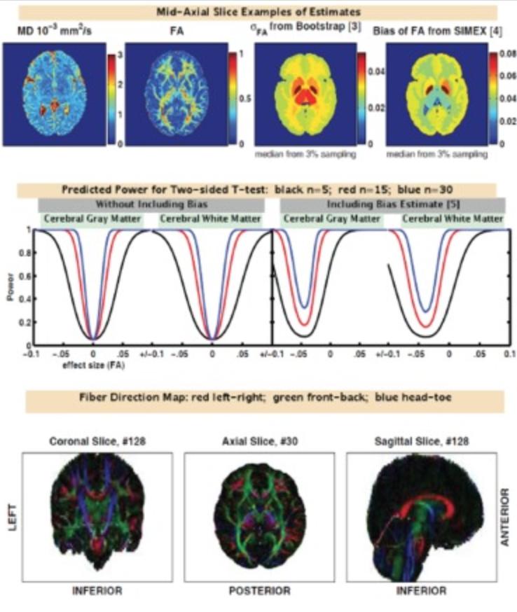 Diffusion Imaging