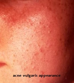 acne vulgaris appearance