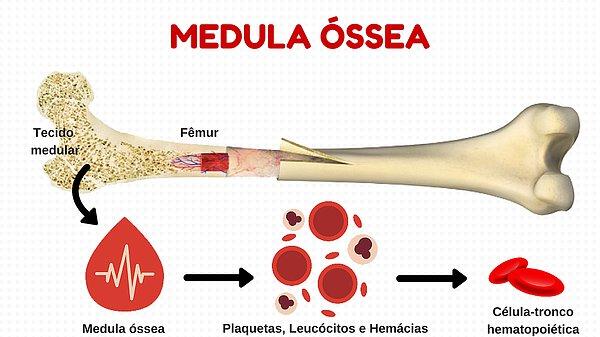 Exame de medula ossea