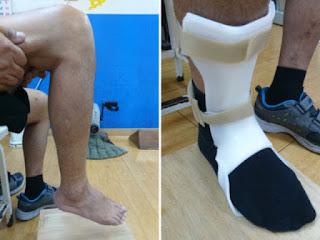 踝足副木(ankle-foot-orthosis, AFO)