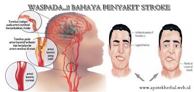 Inilah yang harus di ketahui bahaya dari penyakit stroke dan solusinya