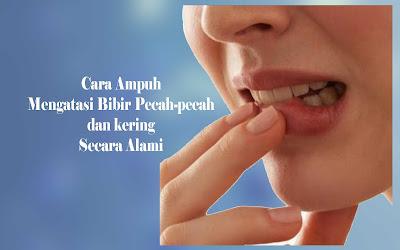 cara ampuh mengatasi bibir pecah-pecah dan kering secara alami