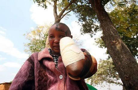 """I stayed to save my marriage"""" says woman whose hands were chopped off by her husband for not conceiving"""