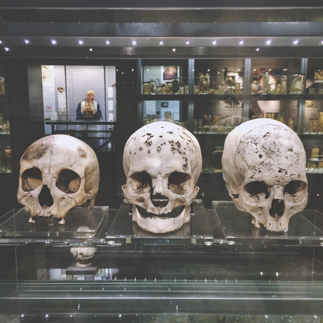 Syphilis skulls at Hunterian Museum
