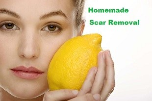 How To Make Homemade Scar Removal Treatment
