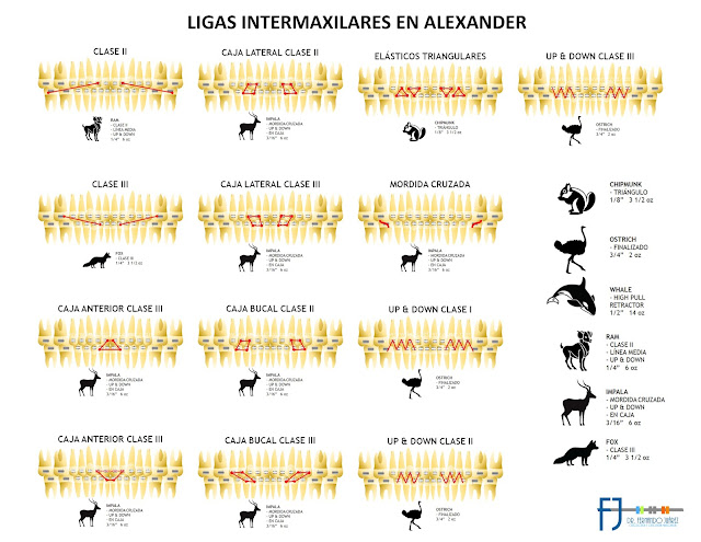 Elásticos Alexander - Brackets Veracruz