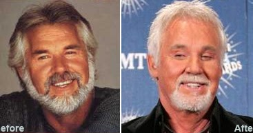 Chatter Busy Kenny Rogers Plastic Surgery