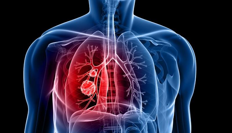 Pneumonia: É Contagiosa, Causas, Sintomas e Transmissão