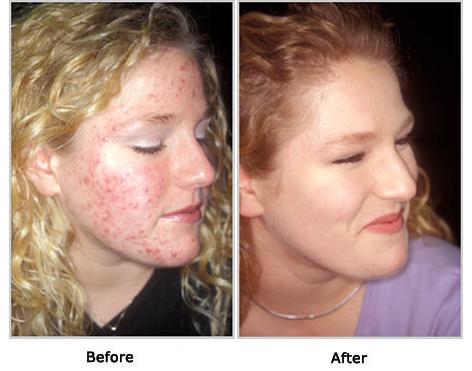 health news centre tips for acne free plexion