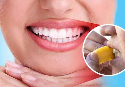 Cara Memutihkan Gigi Kuning Secara Alami dengan Kulit Pisang