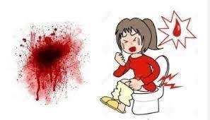 Gambar Cara sembuhkan BAB berdarah berwarna merah terang dan tidak nyeri