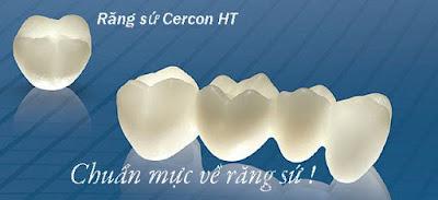 Răng toàn sứ Cercon và những điều bạn chưa biết