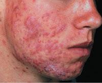 Obat Gatal-Gatal Pada Hidung Pipi Atau Wajah | Obat Ampuh Tanpa Efek Samping
