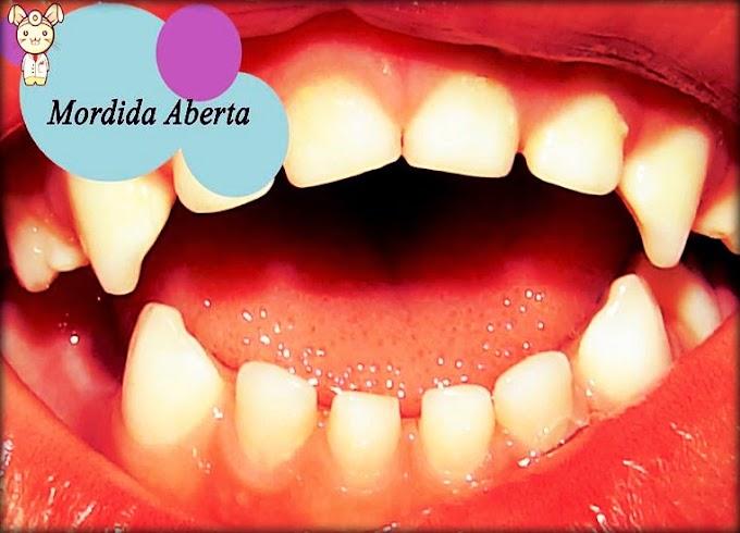 ODONTOPEDIATRIA: Ortopedia Funcional e Ortodontia