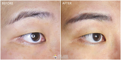 Immediate result after first Korean Eyebrow Embroidery with Ivy Brow Design (right eye)
