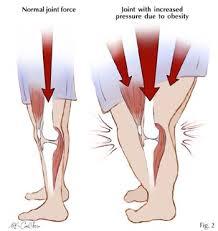nyeri lutut akibat obesitas, osteoarthritis obesitas, kegemukan nyeri lutut