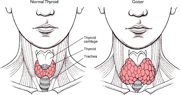 Obat Alami Hipertiroid