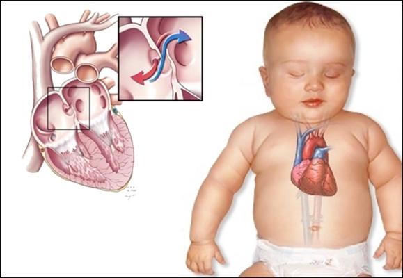 Pengobatan Jantung Bocor Pada Bayi Baru Lahir