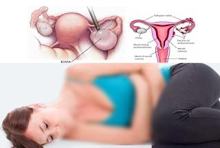 Ramuan Dan Tanaman Obat Kista Ovarium Tanpa Operasi Secara Alami