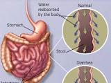 Diare Kronis: Gejala, Penyebab, dan Pengobatan