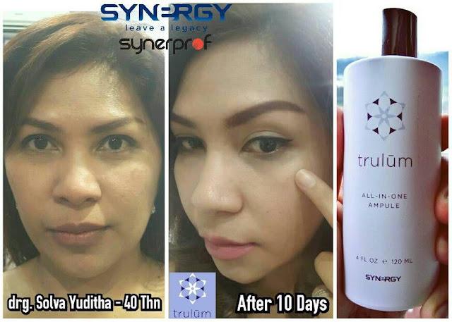 Jual Serum Penghilang Jerawat Trulum Skincare Sukamantri