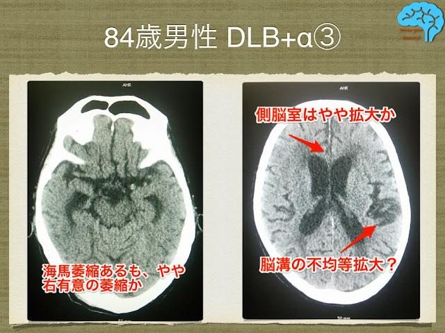 頭部画像はDLB典型例ではない