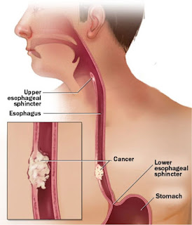 esophageal cancer acid reflux symptoms, esophagus cancer acid reflux, can esophageal cancer cause acid reflux, acid reflux esophageal cancer age, esophageal cancer and acid reflux, difference between acid reflux and esophageal cancer, esophageal cancer caused by acid reflux, can you get esophageal cancer from acid reflux, esophageal cancer due to acid reflux, acid reflux side effects esophageal cancer, esophageal cancer from acid reflux,