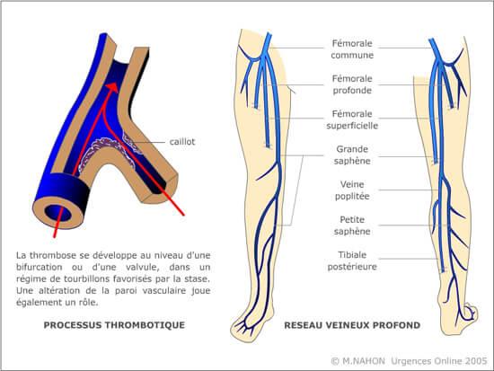 Cours PDF | Thrombose Veineuse Profonde des membres inférieurs TPV  - Deep vein thrombosis DVT