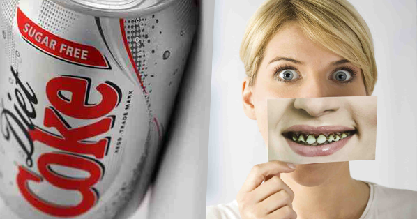 what does diet coke do to your teeth