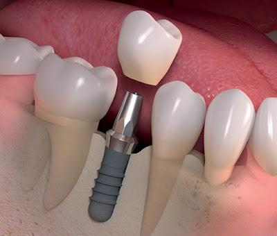 ¿Y si no se puede recurrir al implante?