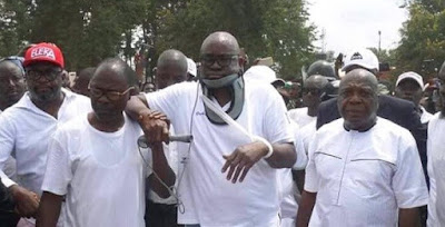 Doctor reveals new twist about Fayose's 'injuries'