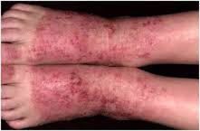 Obat mujarab alami ampuh rontokan eksim di kaki